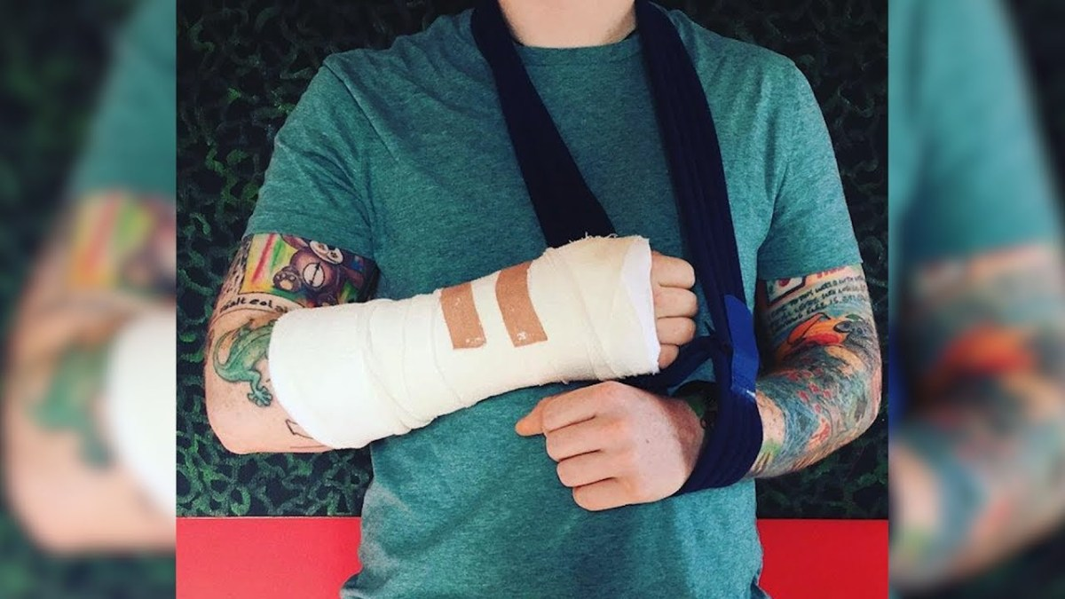 <div>Ed Sheeran's broken arm sparks Indonesian concert lawsuit</div>